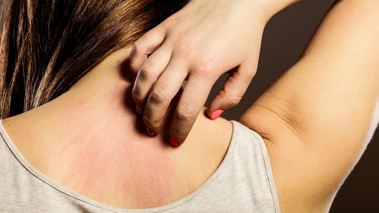 medicamentos-biologicos-sao-aposta-para-tratar-dermatite-atopica
